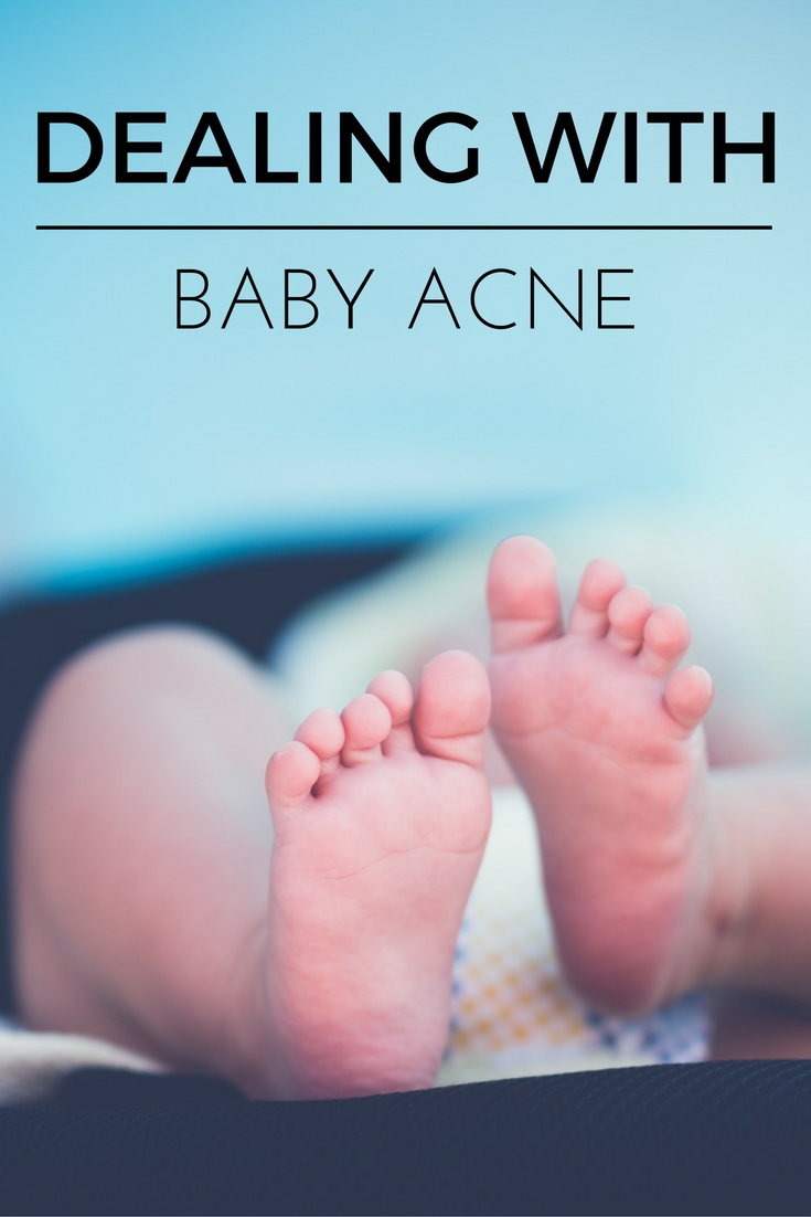How to Treat Baby Acne